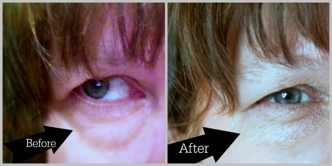 before and after using ageless derma_